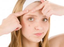 Acne Cosmetica - When Makeup Causes Pimple Breakouts